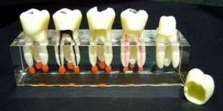 Dental Dentist Clear Study Teaching Demonstration Model Tooth Gift